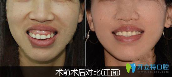 骨性突嘴选择正颌正畸联合治疗改善后对比图