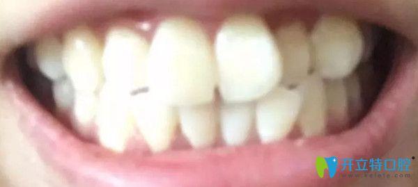 矫正前牙齿的情况