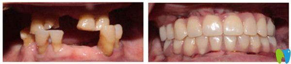 All-on-4全口种植牙前后对比图