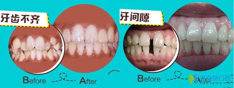 无锡佳士洁口腔李复平牙齿不齐和牙间隙矫正案例图