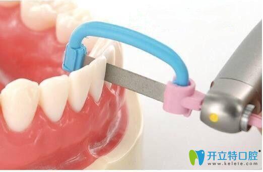 邻面去釉对牙齿有伤害吗