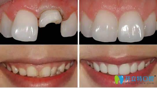 全瓷牙贴面修复牙齿缺损和变色牙效果图