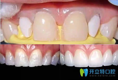 树脂贴面修复缺损牙齿效果图