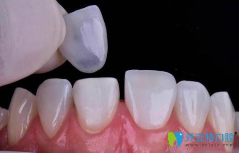 牙齿贴面修复效果图