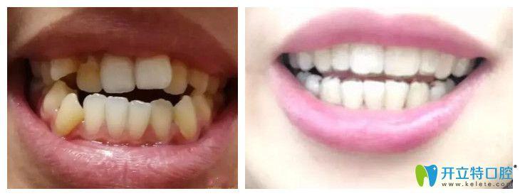 中山好民生口腔隐形牙齿矫正案例
