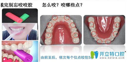 每次戴牙套的时候必须要用正畸咬胶