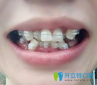 在衡阳谢氏口腔花两万块钱做的陶瓷托槽隐形牙齿矫正贵吗?