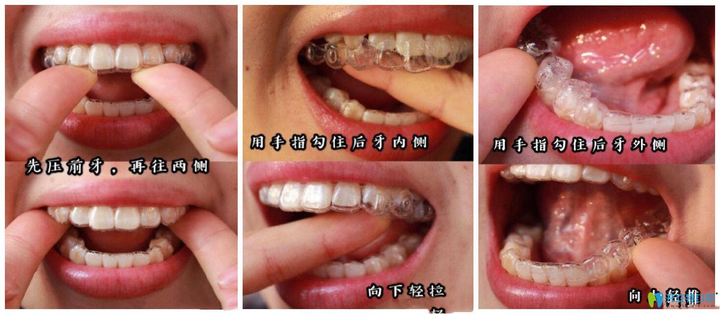 一定要掌握牙套的正确摘戴方法