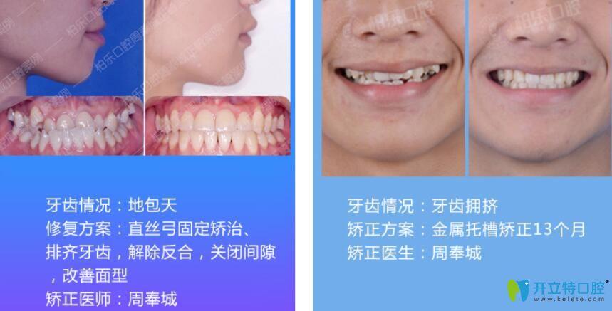 周奉城医生地包天矫正+牙齿拥挤不齐矫正案例