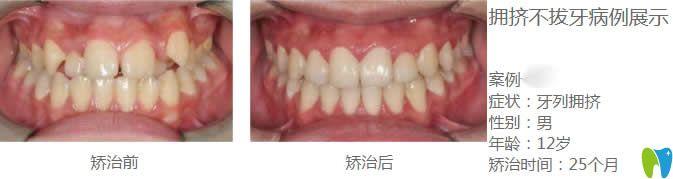 兰州康美口腔牙齿矫正案例