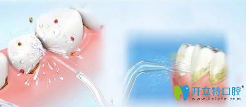 牙周治疗和洗牙的区别