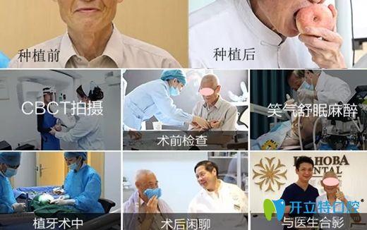 东莞好佰年口腔的数字化种植牙步骤和效果