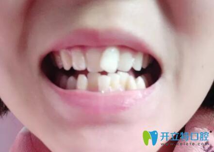 牙齿拥挤在襄阳时代口腔做陶瓷托槽隐形矫正,6个月效果明显