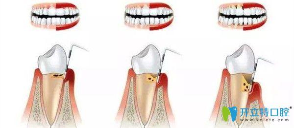 洗牙与牙周治疗的区别