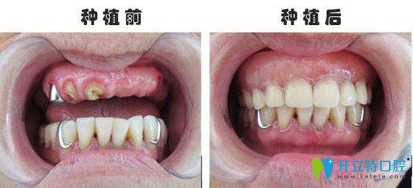 美维口腔种植牙前后对比图