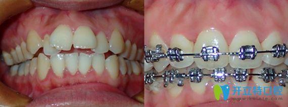 东莞东城区中大口腔做牙齿矫正前后效果对比图