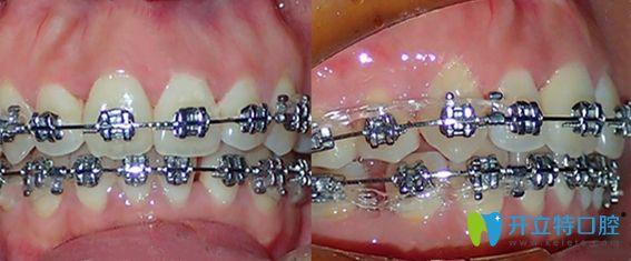 东莞中大口腔牙齿矫正1年效果图
