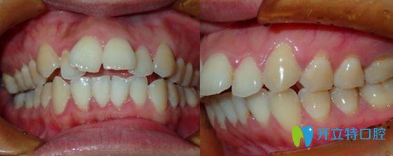 东莞中大口腔做牙齿正畸前的术前照