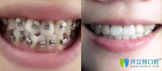 深圳润泽瑞尼丝口腔牙齿矫正效果对比图