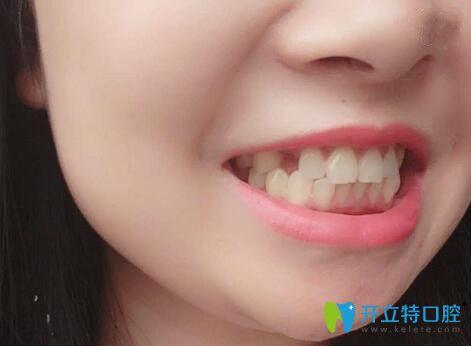 磨牙缺失后我找广州广大口腔荔湾分院张力做了即刻种植牙