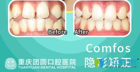 团圆口腔牙齿稀疏采用时代天使隐形矫正前后效果对比