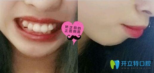分享我在深圳润泽瑞尼丝口腔做齿性龅牙矫正的前后效果