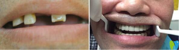 武汉仁爱口腔全口牙即刻负重种植案例前后效果对比