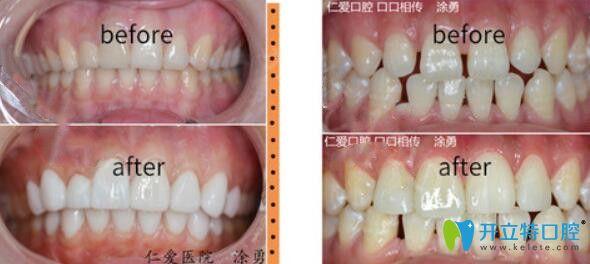 属于武汉仁爱口腔的超薄瓷贴面修复牙齿案例