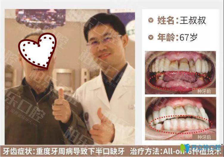 南宁柏乐口腔半口种植牙案例