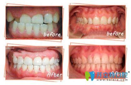 中诺口腔牙齿矫正案例图