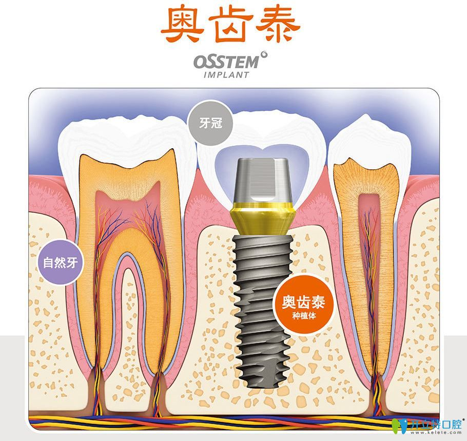 韩国奥齿泰种植牙优缺点