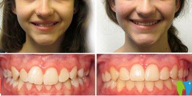 好佰年口腔牙齿深覆颌矫正前后对比图