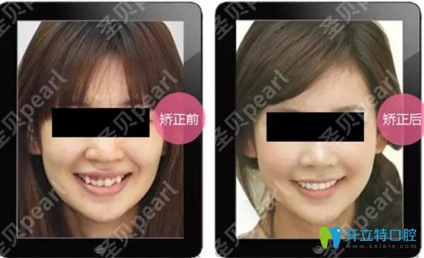 上海圣贝口腔时代天使牙齿矫正真人图