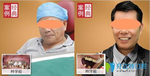 广州广大口腔半口牙种植案例效果图