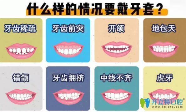 地包天和深覆合等情况需要做牙齿矫正