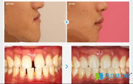 青少年牙齿稀疏选择金属托槽矫正前后对比照