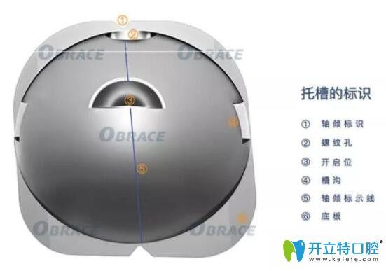 深圳正夫口腔球面自锁托槽技术优势