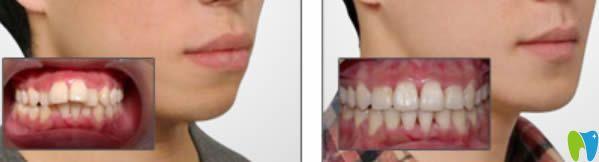 诺德口腔隐适美矫正龅牙前后对比案例
