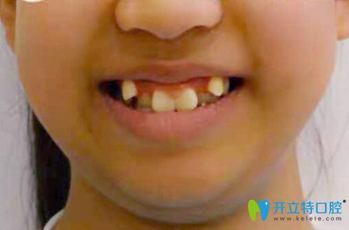 12岁女儿在福州中泽口腔做虎牙矫正1年,牙齿和脸型都变了...