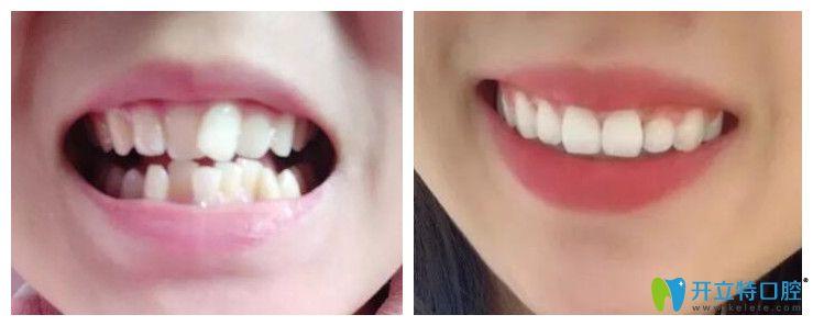 福州中泽口腔隐形牙齿矫正案例
