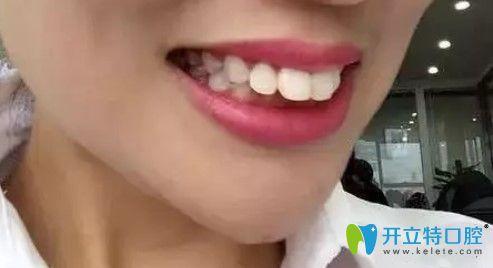 在青岛诺德做完隐适美龅牙矫正后分享一份牙齿矫正价格表