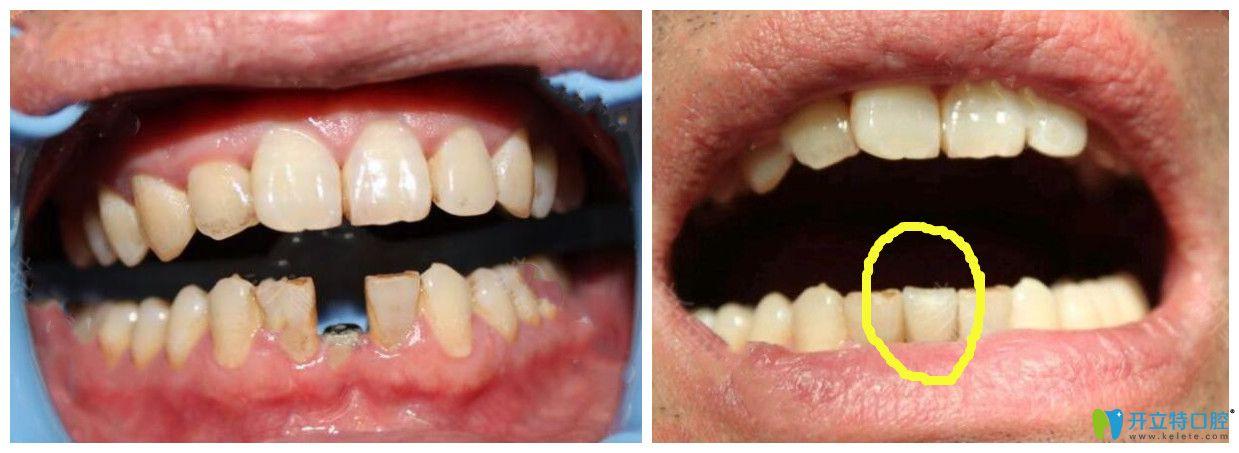 福州中泽口腔单颗牙种植案例