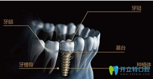 苏州牙博士口腔的种植牙图示