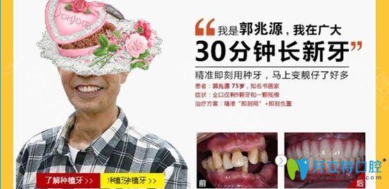 广州广大口腔用3D导板种植牙技术做的全口牙种植效果图
