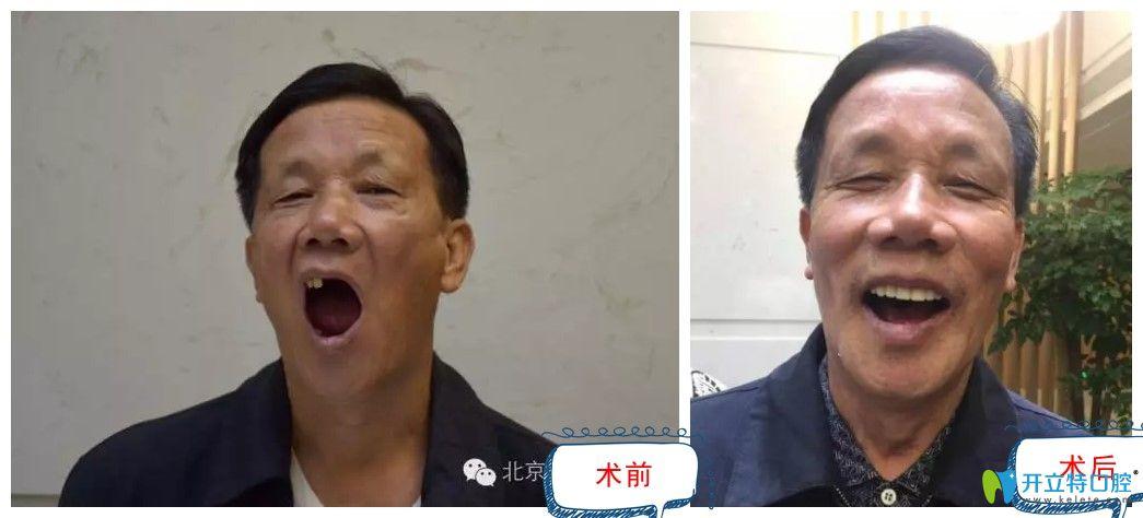 北京中诺种植牙术前术后对比图