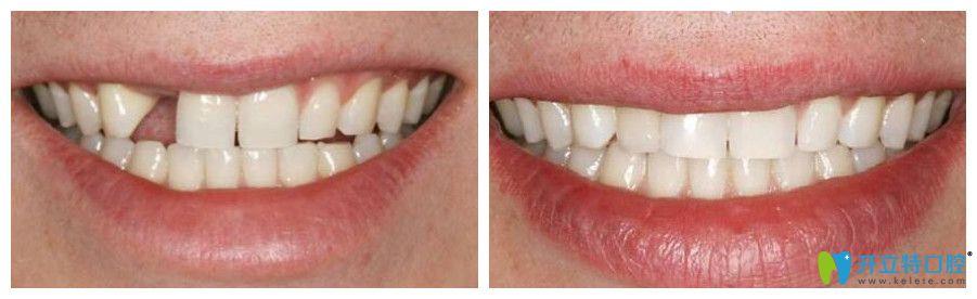 尚美口腔单颗牙即刻种植案例