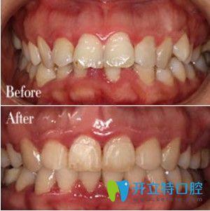 弘和口腔龅牙矫正前后图
