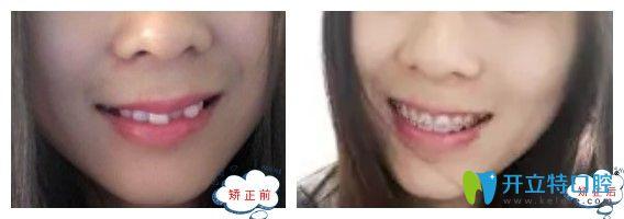 上海中博口腔牙齿矫正前后图