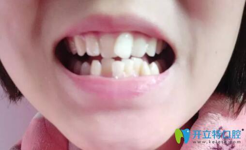我牙齿拥挤在宁波徐茂口腔做国产金属自锁托槽矫正1年半啦