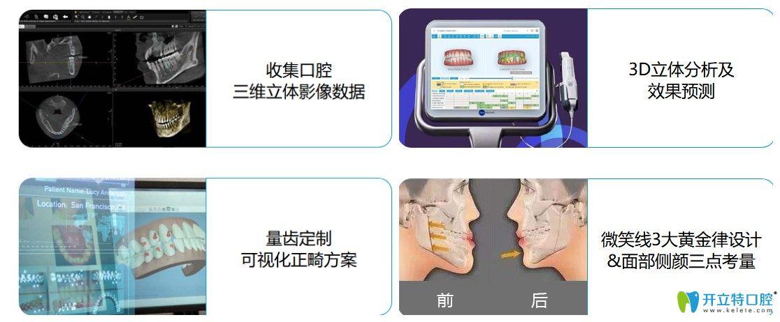 深圳弘和口腔的牙齿矫正的先进技术